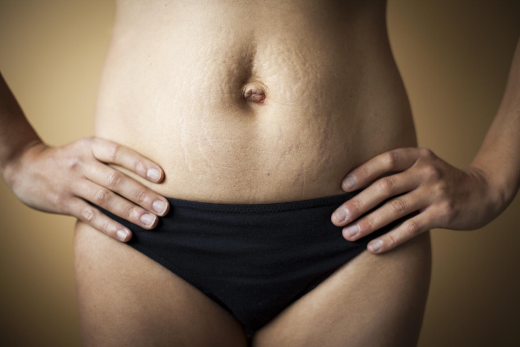 vergetures-ventre-grossesse